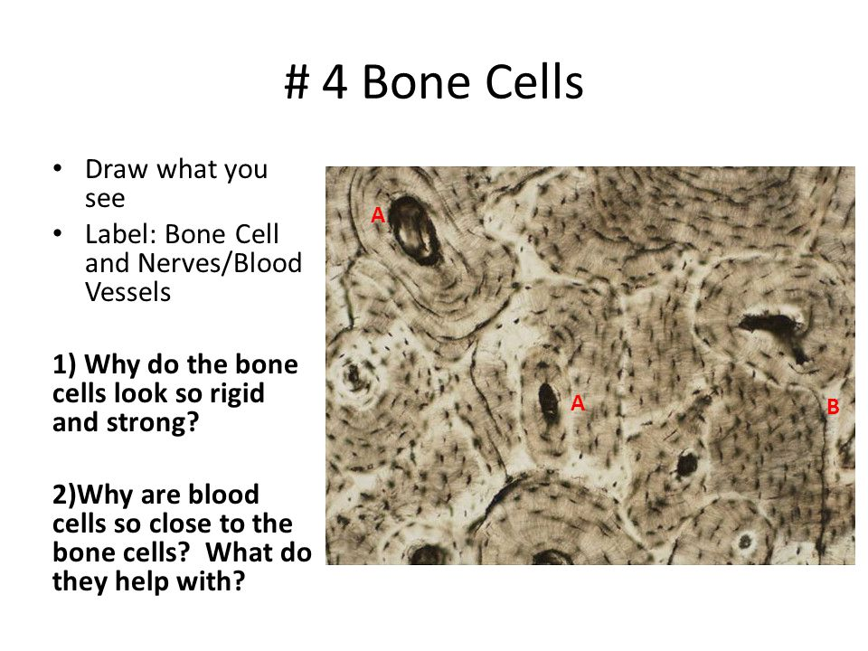 # 4 Bone Cells Draw what you see Label: Bone Cell and Nerves/Blood Vessels 1) Why do the bone cells look so rigid and strong? 2)Why are blood cells so