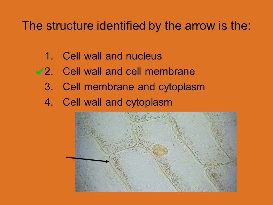 The structure identified by the arrow is the: 1.Cell wall and nucleus 2.Cell wall and cell membrane 3.Cell membrane and cytoplasm 4.Cell wall and cytoplasm