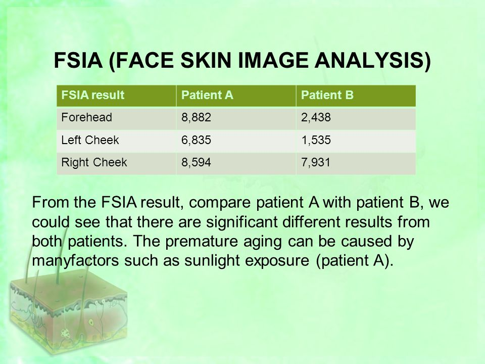FSIA (FACE SKIN IMAGE ANALYSIS) FSIA resultPatient APatient B Forehead8,8822,438 Left Cheek6,8351,535 Right Cheek8,5947,931 From the FSIA result, compare patient A with patient B, we could see that there are significant different results from both patients.