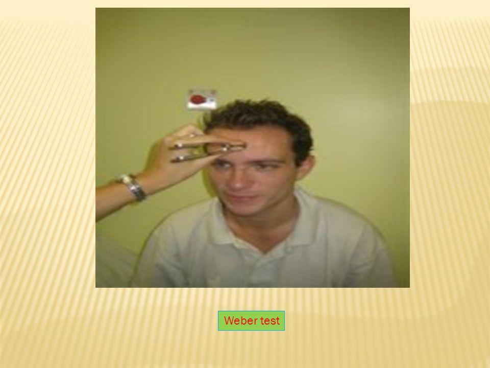 Weber test