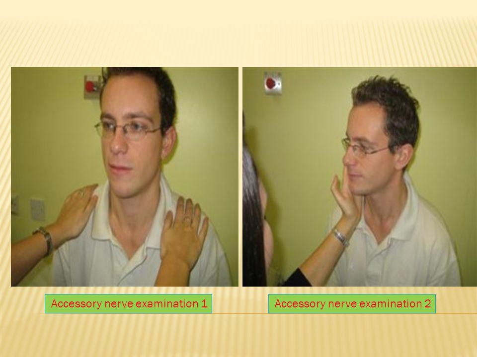 Accessory nerve examination 1Accessory nerve examination 2