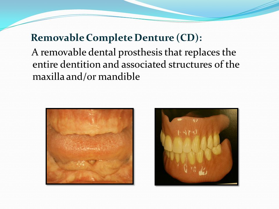 3.Material most commonly used for fabrication of complete denture A.