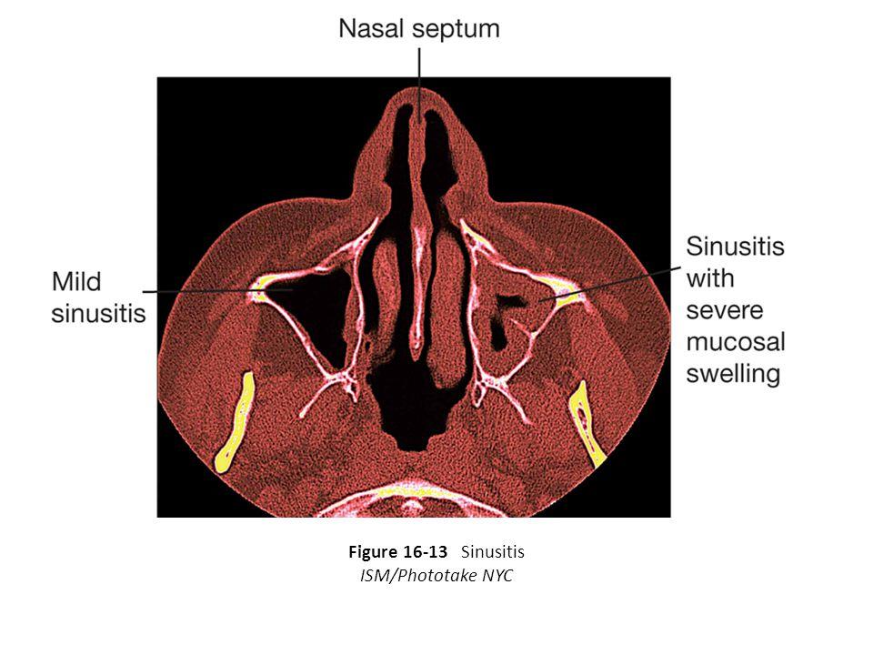 Figure 16-13 Sinusitis ISM/Phototake NYC