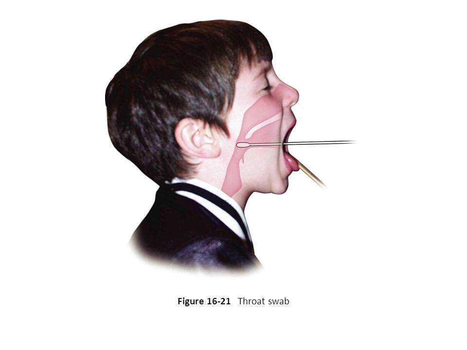 Figure 16-21 Throat swab