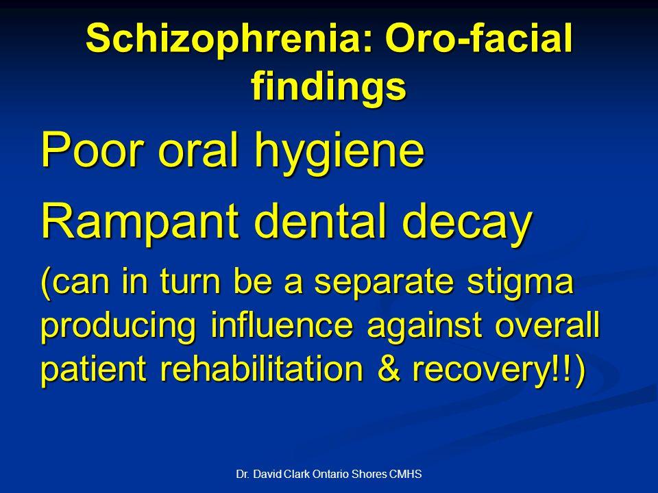 Schizophrenia: Oro-facial findings Dr.
