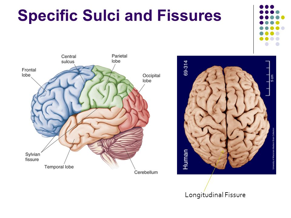 Specific Sulci and Fissures Longitudinal Fissure