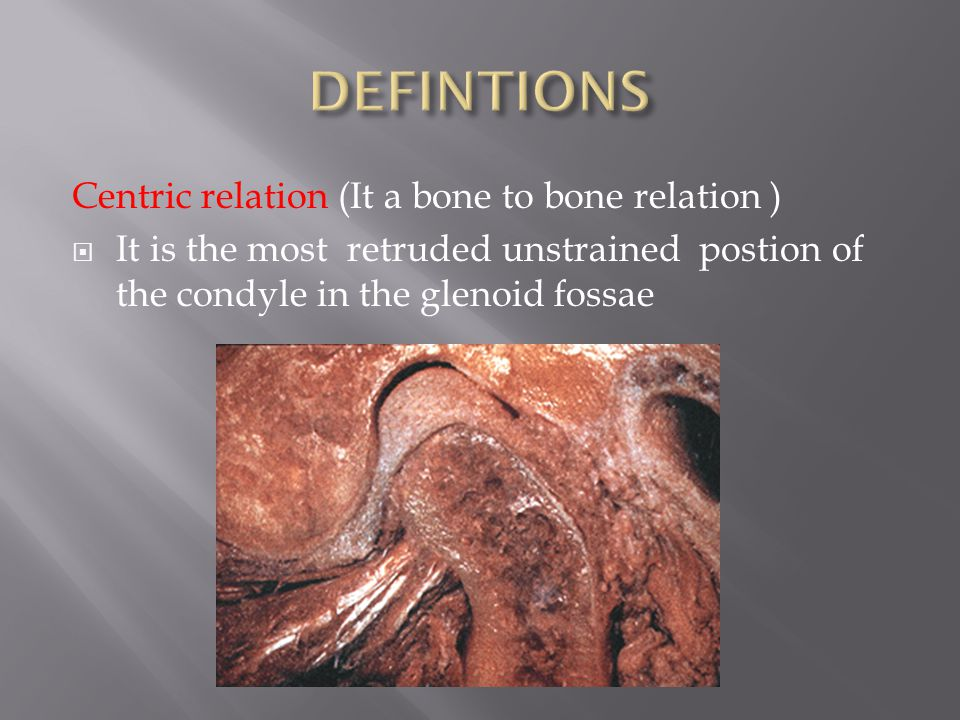 The symptoms of the joint due to reduced V.D.