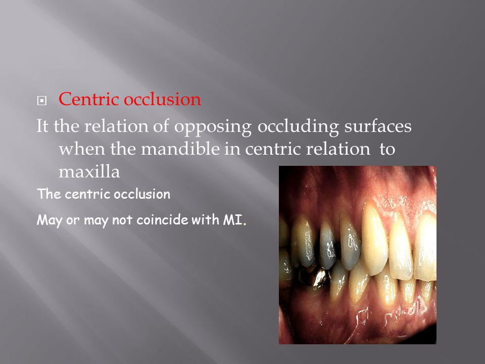 Occlusal Vertical Dimension The distance measured between two points when occluding members are in contact in centric occlusion.