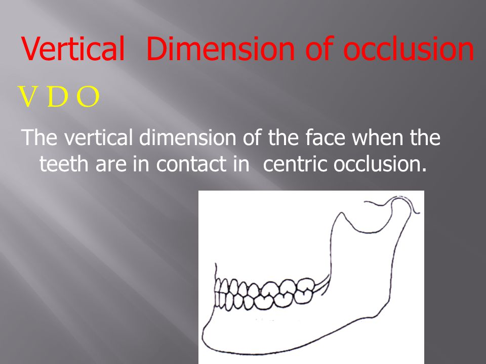 Vertical Dimension of occlusion V D O The vertical dimension of the face when the teeth are in contact in centric occlusion.