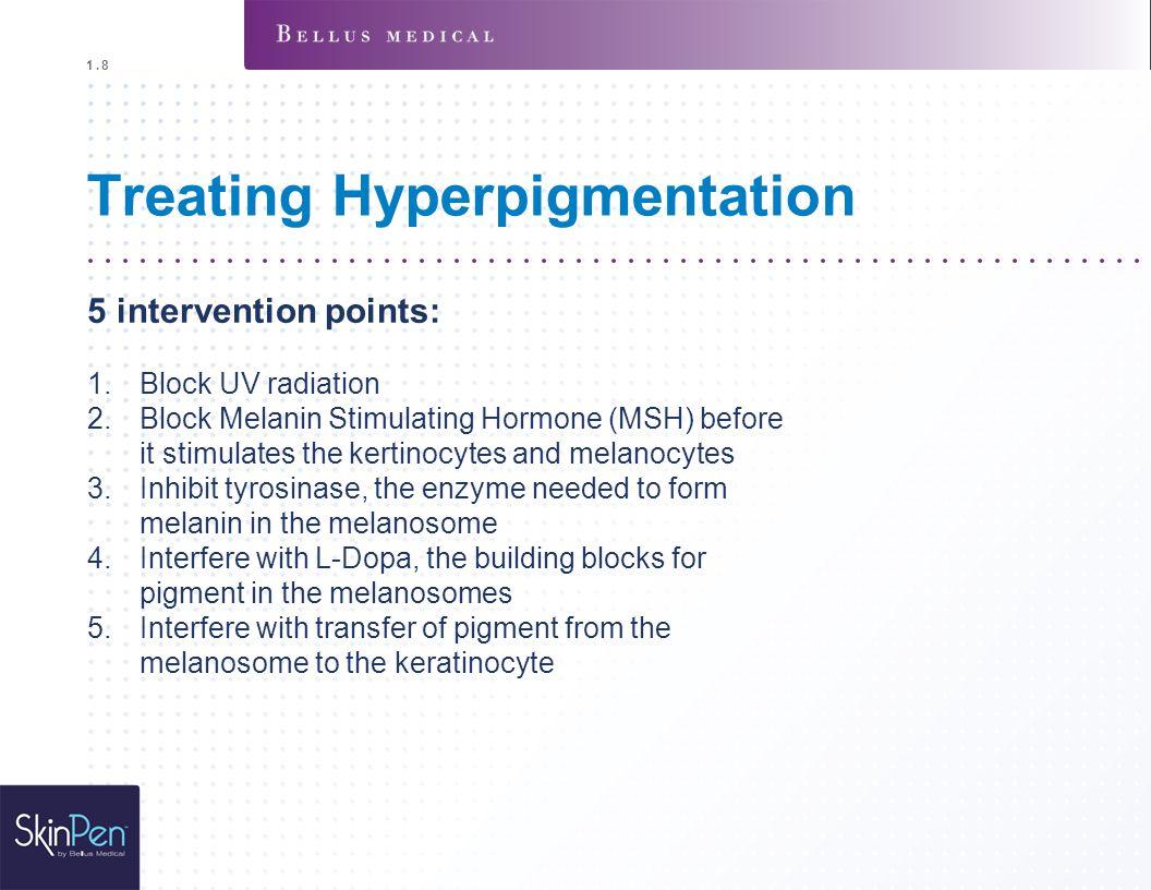 Treating Hyperpigmentation 5 intervention points: 1.Block UV radiation 2.Block Melanin Stimulating Hormone (MSH) before it stimulates the kertinocytes