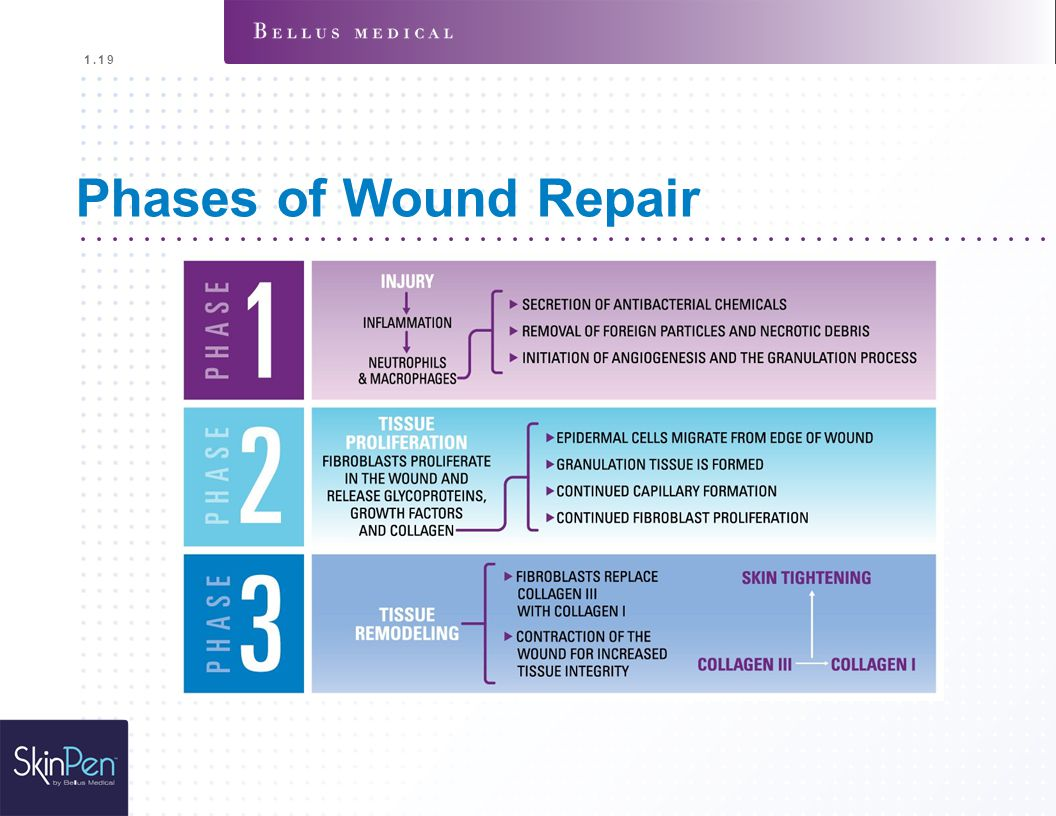 1.19 Phases of Wound Repair