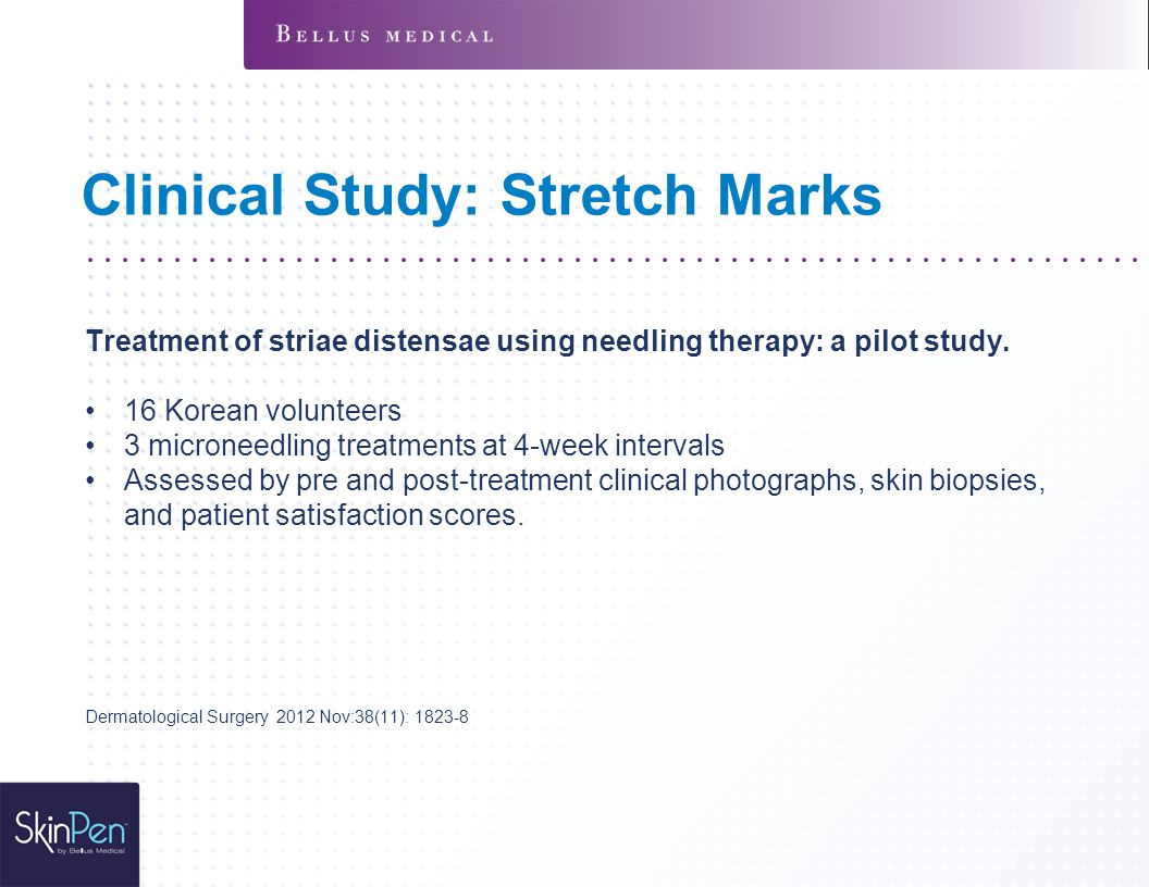 Clinical Study: Stretch Marks Treatment of striae distensae using needling therapy: a pilot study.