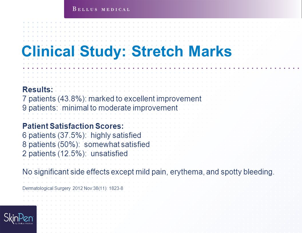 Clinical Study: Stretch Marks Results: 7 patients (43.8%): marked to excellent improvement 9 patients: minimal to moderate improvement Patient Satisfaction Scores: 6 patients (37.5%): highly satisfied 8 patients (50%): somewhat satisfied 2 patients (12.5%): unsatisfied No significant side effects except mild pain, erythema, and spotty bleeding.