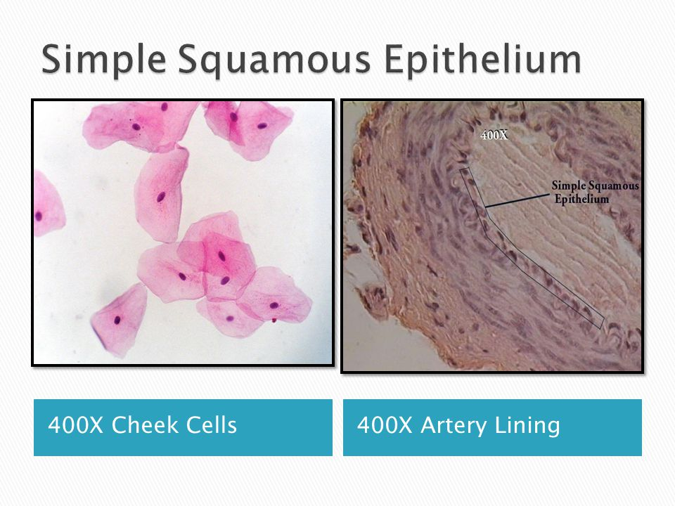 400X Cheek Cells400X Artery Lining