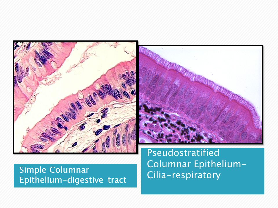 Simple Columnar Epithelium-digestive tract Pseudostratified Columnar Epithelium- Cilia-respiratory