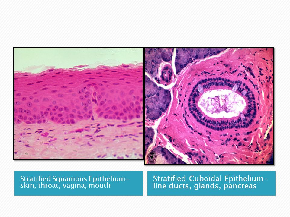 Stratified Squamous Epithelium- skin, throat, vagina, mouth Stratified Cuboidal Epithelium- line ducts, glands, pancreas