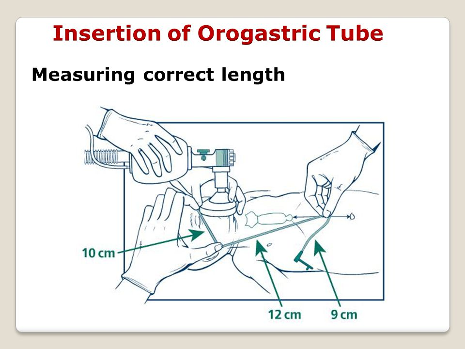 Measuring correct length