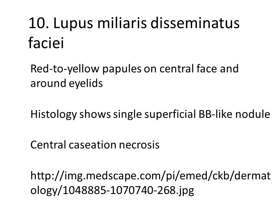 10. Lupus miliaris disseminatus faciei Red-to-yellow papules on central face and around eyelids Histology shows single superficial BB-like nodule Cent
