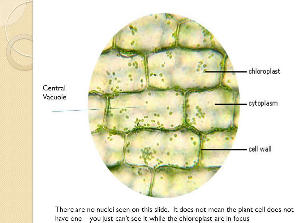 Central Vacuole There are no nuclei seen on this slide. It does not mean the plant cell does not have one – you just can't see it while the chloroplas