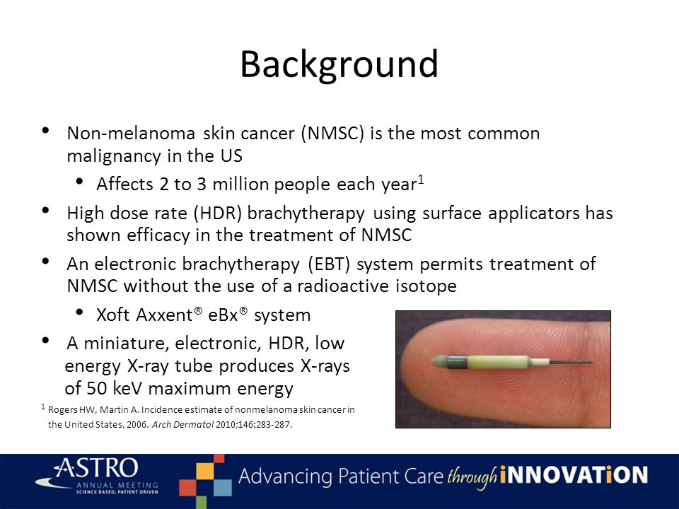 Background Non-melanoma skin cancer (NMSC) is the most common malignancy in the US Affects 2 to 3 million people each year 1 High dose rate (HDR) brac
