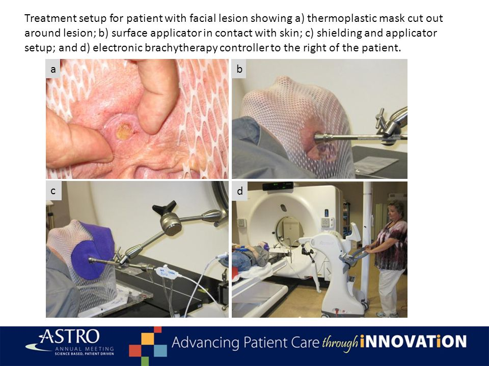 Conclusions As of date, treatment of non-melanoma skin cancer with HDR electronic brachytherapy using surface applicators was effective and convenient comparable to Ir-192 HDR brachytherapy Cosmesis was good to excellent up to 2 years post-treatment Toxicities were acceptable No recurrences to date, but longer follow up is being collected Brachytherapy (electronic or traditional) is an ideal modality for patients (especially elderly patients) with NMSC given the excellent results and convenient schedule We (Radiation Oncology) need to take a more prominent role in the treatment of NMSC