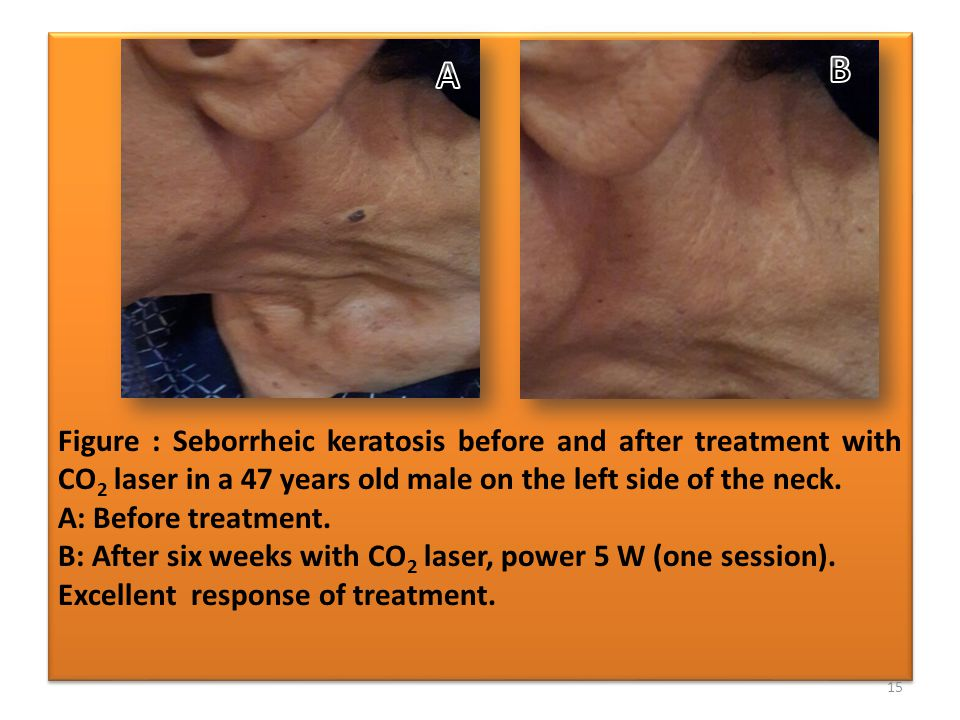 Figure : Seborrheic keratosis before and after treatment with CO 2 laser in a 47 years old male on the left side of the neck.