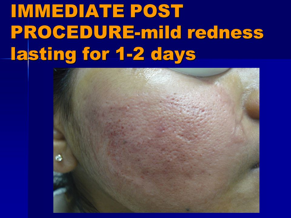IMMEDIATE POST PROCEDURE-mild redness lasting for 1-2 days