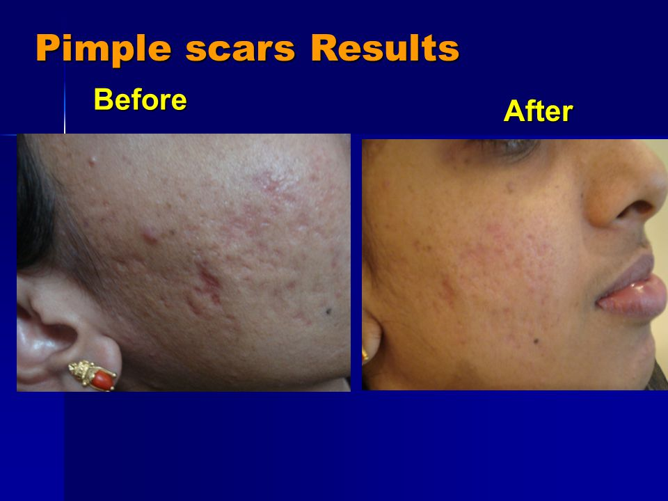 Pimple scars Results After After Before Before