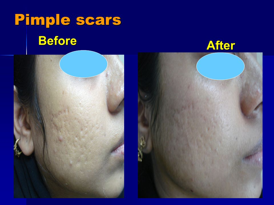 Pimple scars After After Before Before