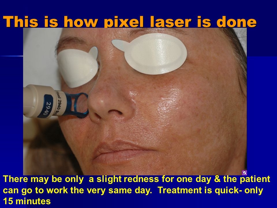 This is how pixel laser is done There may be only a slight redness for one day & the patient can go to work the very same day.