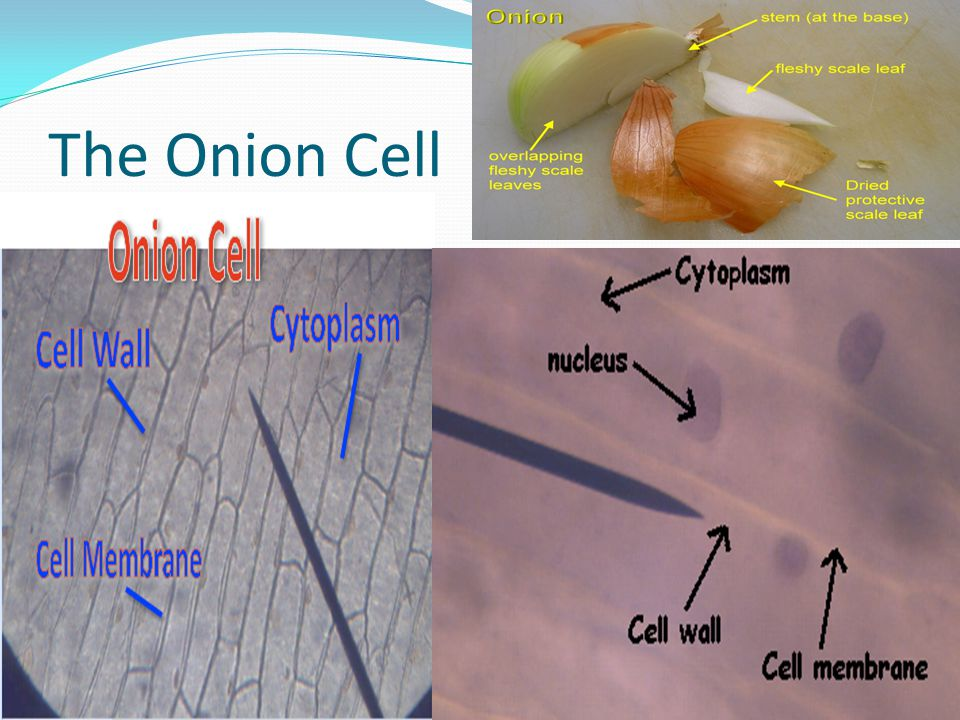 The Onion Cell