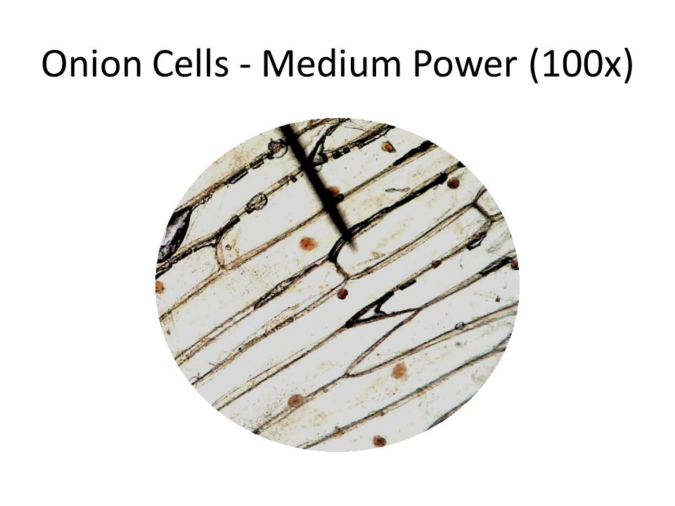 Onion Cells - Medium Power (100x)
