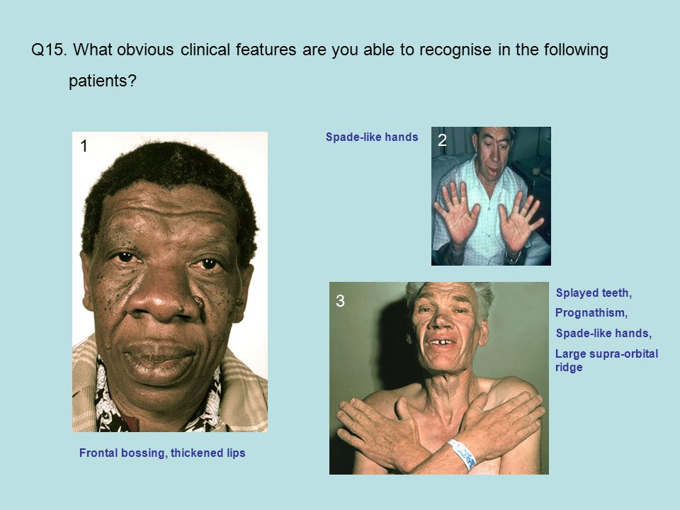 Q15. What obvious clinical features are you able to recognise in the following patients.