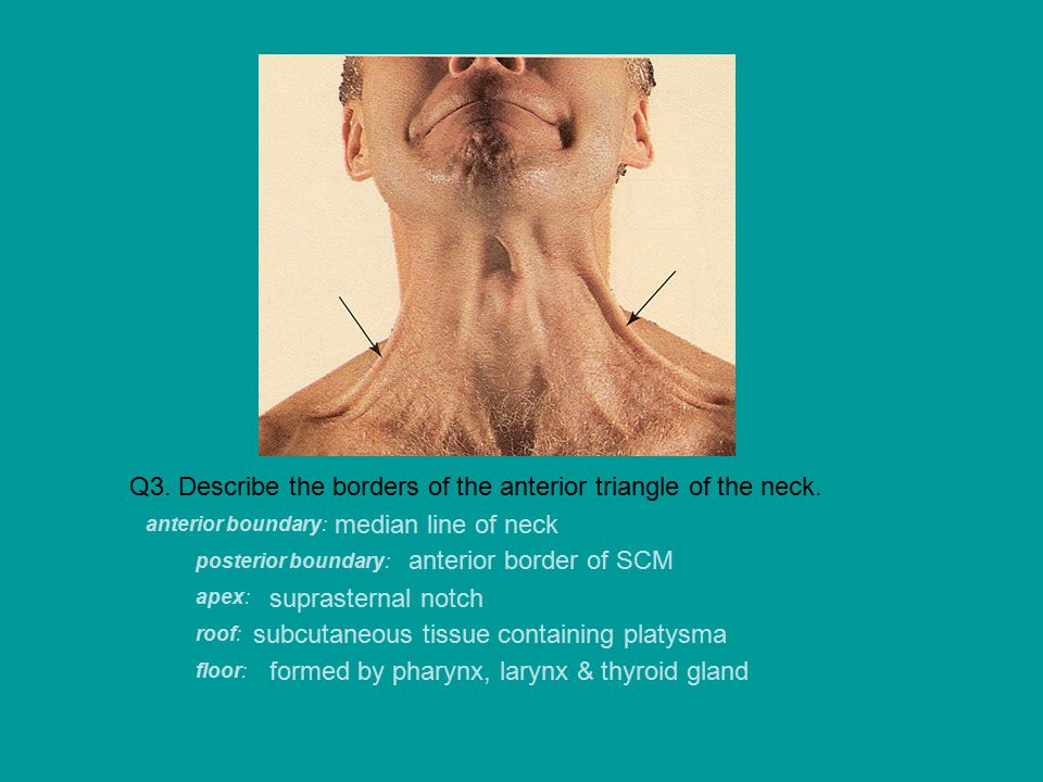 Q16.What facial features of Cushing's syndrome are present in this patient.