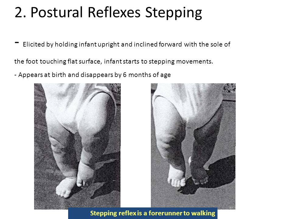 2. Postural Reflexes Stepping - Elicited by holding infant upright and inclined forward with the sole of the foot touching flat surface, infant starts