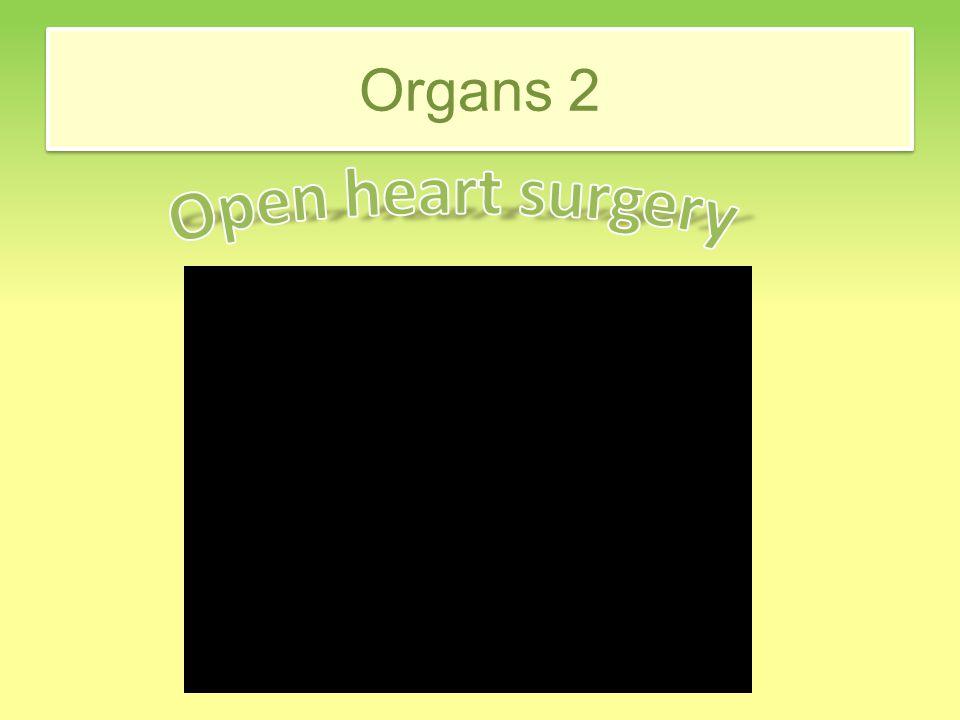 Organs 2
