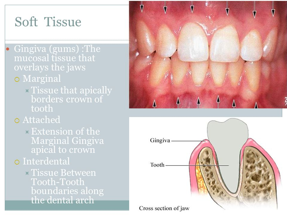 Soft Tissue Gingiva (gums) :The mucosal tissue that overlays the jaws  Marginal  Tissue that apically borders crown of tooth  Attached  Extension