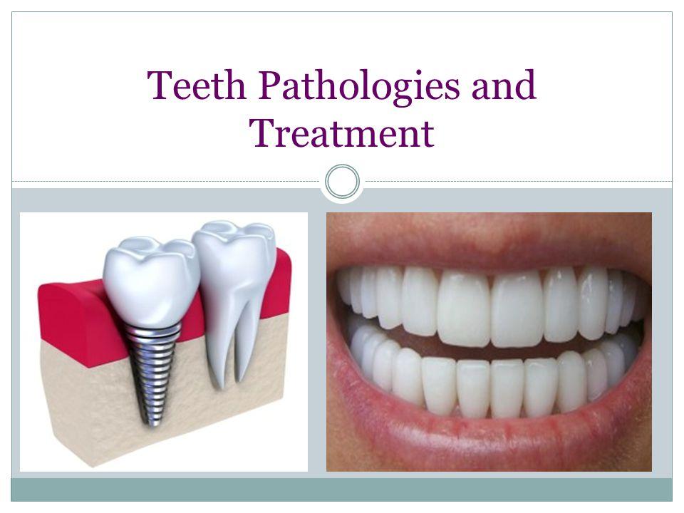 Teeth Pathologies and Treatment