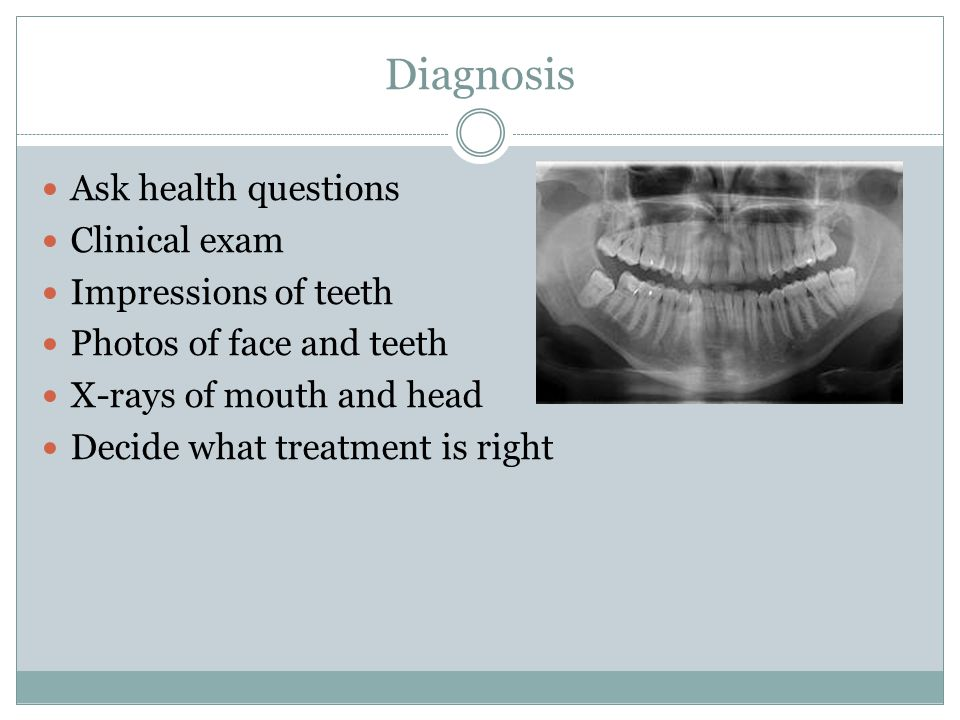 Diagnosis Ask health questions Clinical exam Impressions of teeth Photos of face and teeth X-rays of mouth and head Decide what treatment is right
