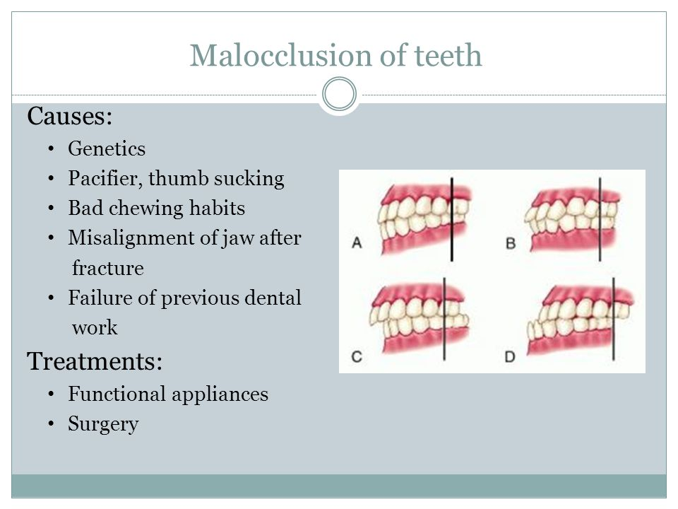 Malocclusion of teeth Causes: Genetics Pacifier, thumb sucking Bad chewing habits Misalignment of jaw after fracture Failure of previous dental work T