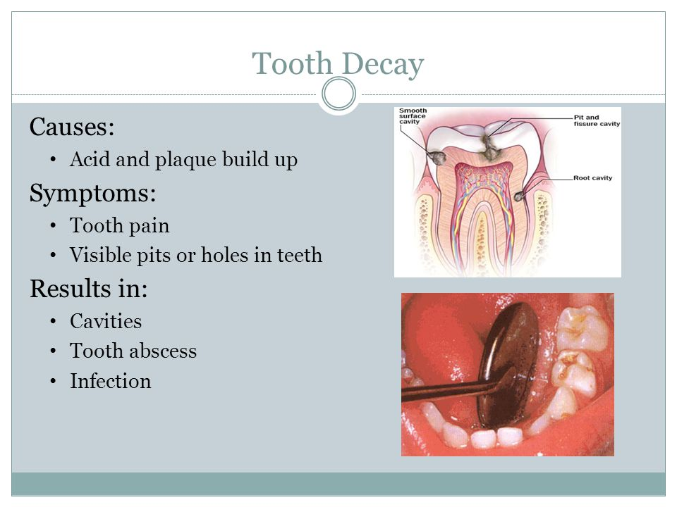 Tooth Decay Causes: Acid and plaque build up Symptoms: Tooth pain Visible pits or holes in teeth Results in: Cavities Tooth abscess Infection