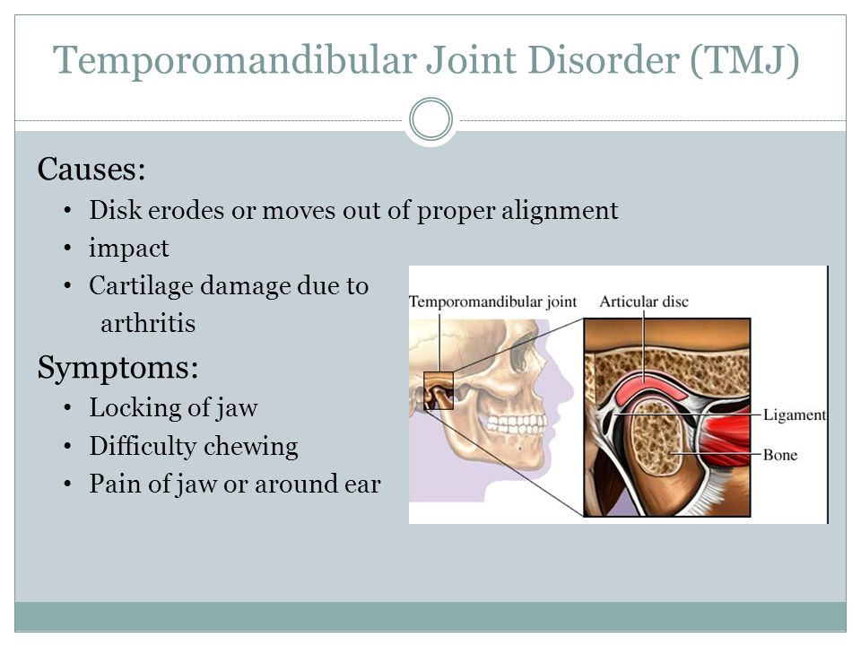 Temporomandibular Joint Disorder (TMJ) Causes: Disk erodes or moves out of proper alignment impact Cartilage damage due to arthritis Symptoms: Locking