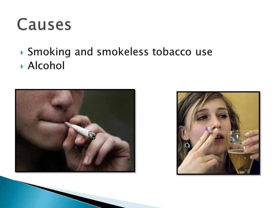  Smoking and smokeless tobacco use  Alcohol
