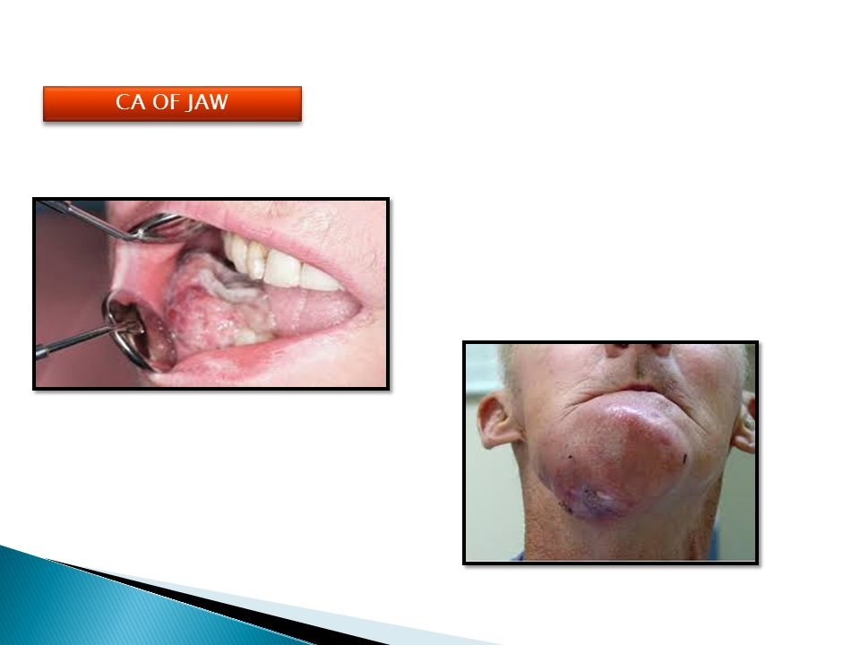 CA OF JAW