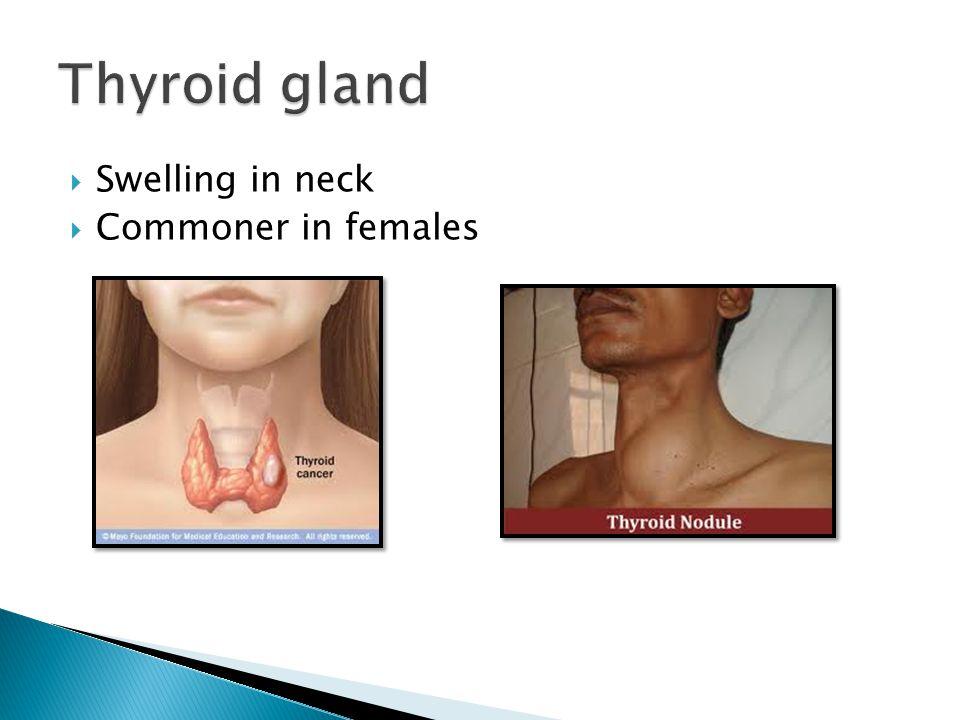  Swelling in neck  Commoner in females