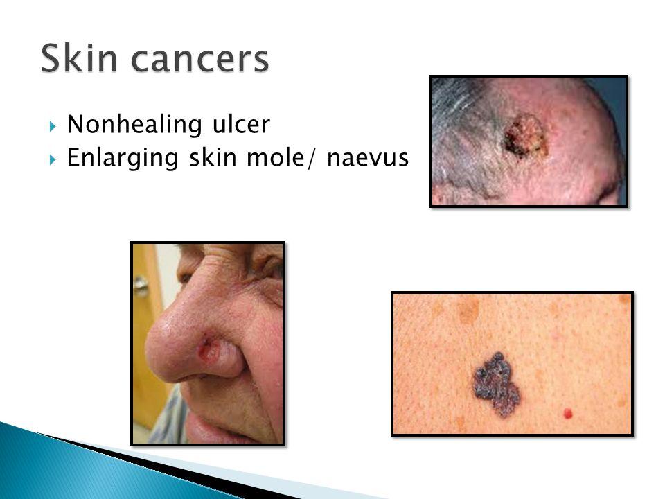  Nonhealing ulcer  Enlarging skin mole/ naevus