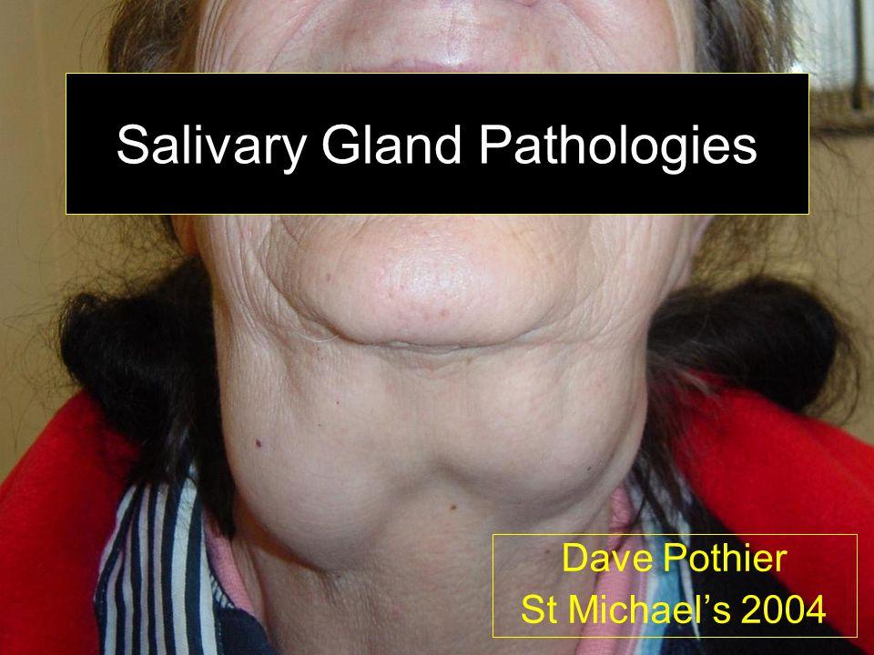 Salivary Gland Pathologies Dave Pothier St Michael's 2004