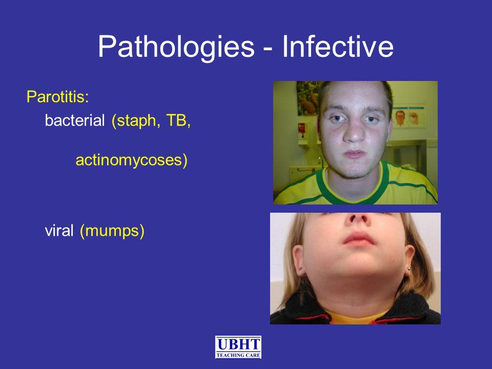 Pathologies - Infective Parotitis: bacterial (staph, TB, actinomycoses) viral (mumps)