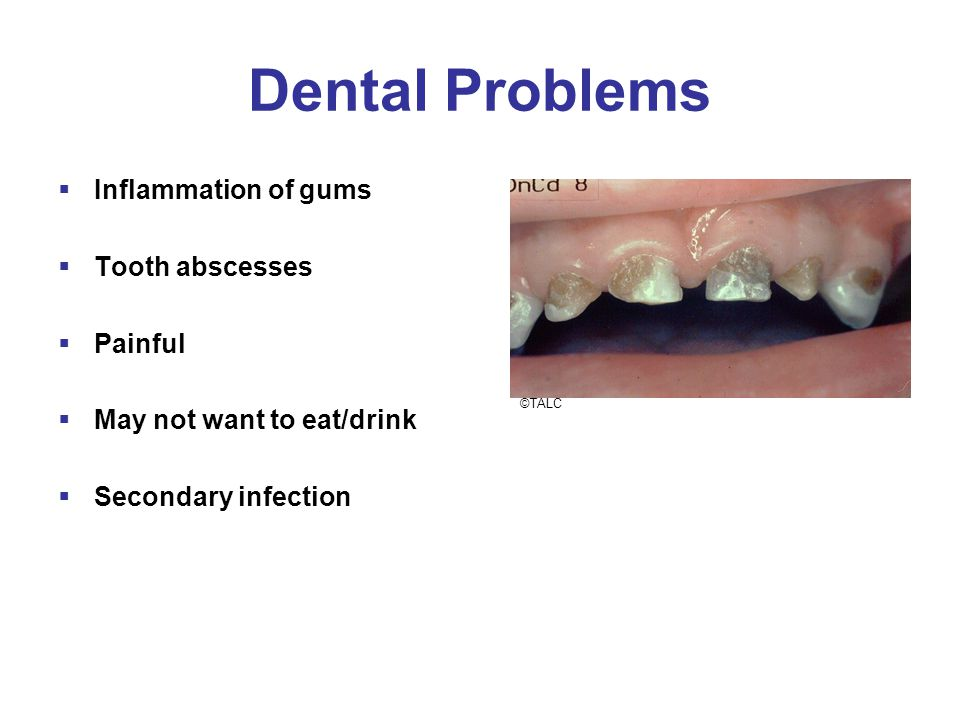 Dental Problems  Inflammation of gums  Tooth abscesses  Painful  May not want to eat/drink  Secondary infection ©TALC