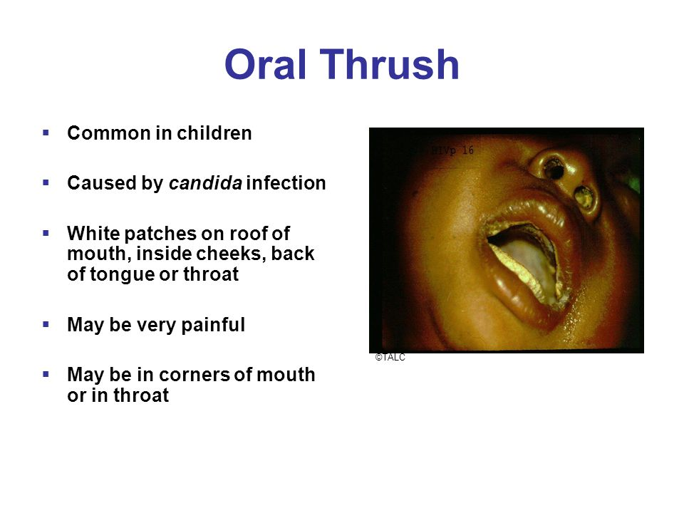 Oral Thrush  Common in children  Caused by candida infection  White patches on roof of mouth, inside cheeks, back of tongue or throat  May be very painful  May be in corners of mouth or in throat ©TALC